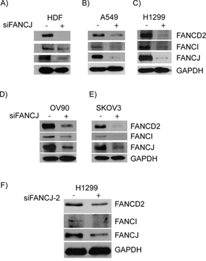 Down-regulation or loss of FANCJ concomitantly diminishes FANCD2 and FANCI proteins in multiple cell lines.