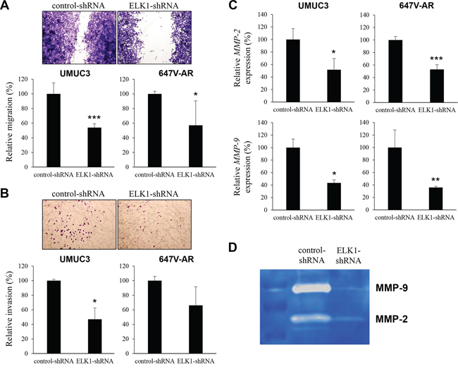 Effects of ELK1 inactivation on bladder cancer cell migration and invasion.