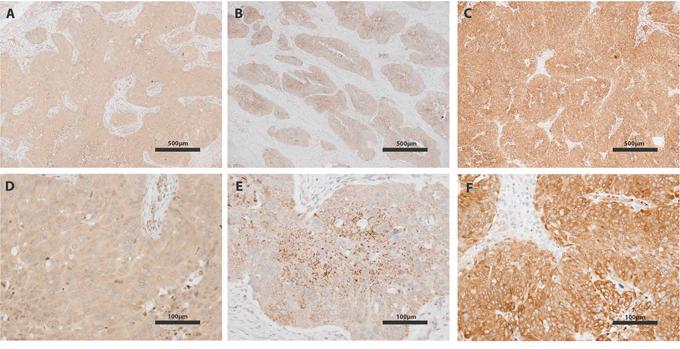 IGF-I, IGF-II and IGFBP-4 immunohistochemistry of ovarian tumors.
