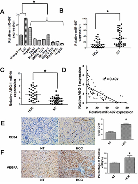 Reduced expression of miR-497 in liver cancer cell lines and tissues.