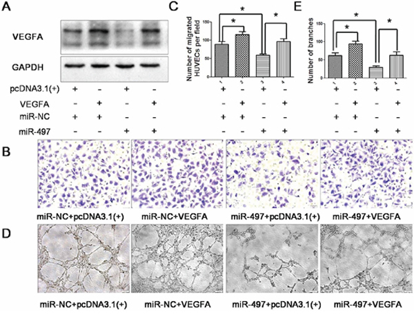 Over-expression of VEGFA attenuates the anti-angiogenic effect of miR-497.