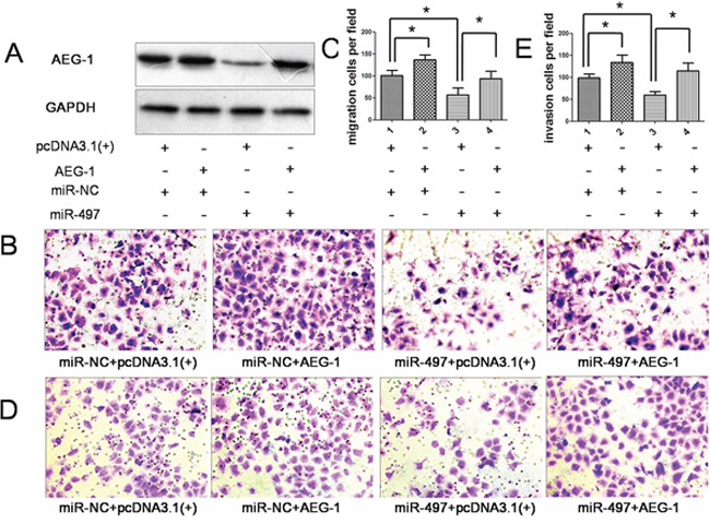 Overexpression of AEG-1 attenuated the anti-metastatic effect of miR-497.
