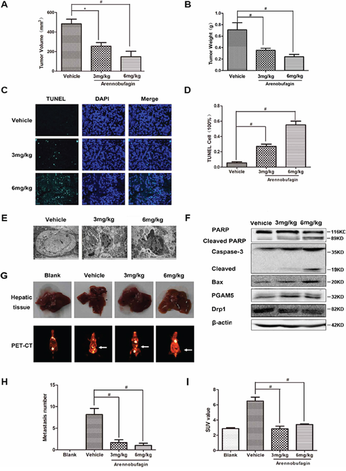 Arenobufagin inhibits growth and metastasis of orthotopically implanted colorectal carcinoma through inducing apoptosis.