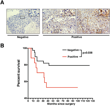 Expression of AXL protein correlates with poorer survival of TNBC patients.