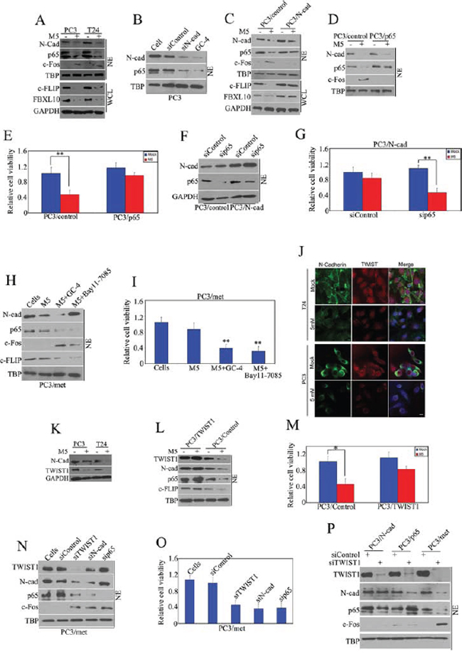 Pro-apoptotic effect of metformin is TWIST1/N-cadherin/NF-kappaB signaling dependent.