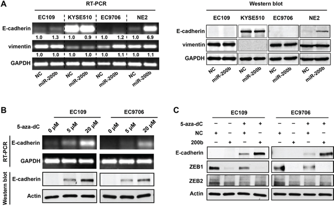DNA methylation of E-cadherin gene blocks the control of E-cadherin expression by the miR-200b-ZEB1/2 axis.