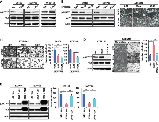 AKT mediates the biological effect of miR-200b in suppressing ESCC cell invasiveness.