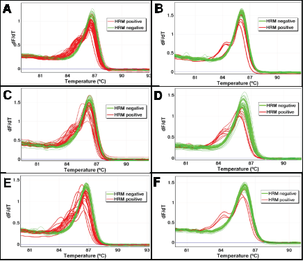 The effect of UDG treatment on sequence artefacts in AKT1 as assessed using LCN-HRM.