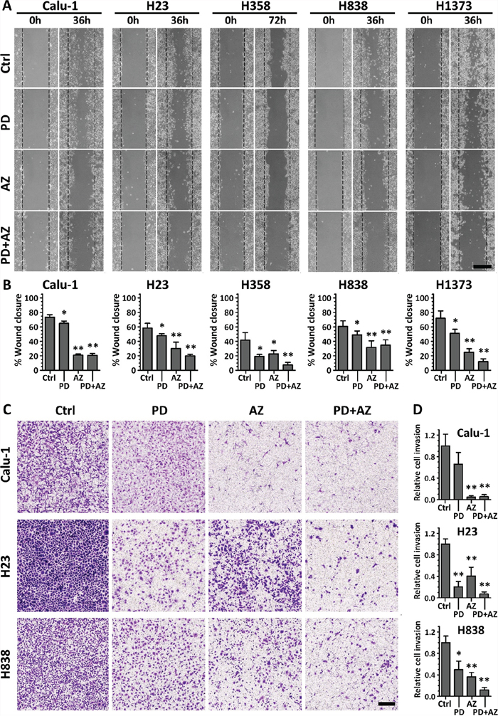 PD0325901 and Saracatinib and the combination treatment reduced cell migratory and invasive activity.
