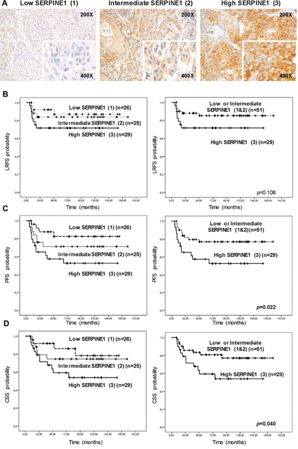 High protein SERPINE1 expression is associated with poor prognosis in patients with head and neck carcinoma included in a retrospective study.