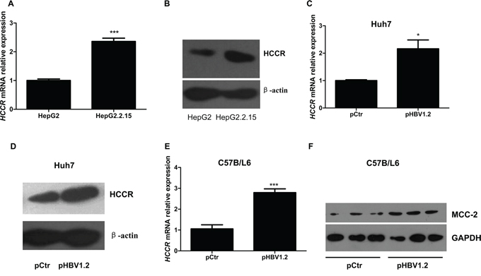 HBV upregulates HCCR expression at the transcriptional level both in vitro and in vivo.