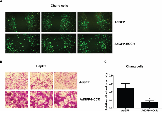 HCCR affects the migration, invasion and adhesion of hepatocytes.