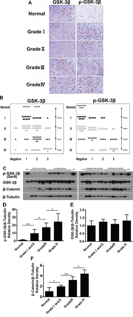 Human glioma tissues express high levels of p-GSK-3β (Ser9).