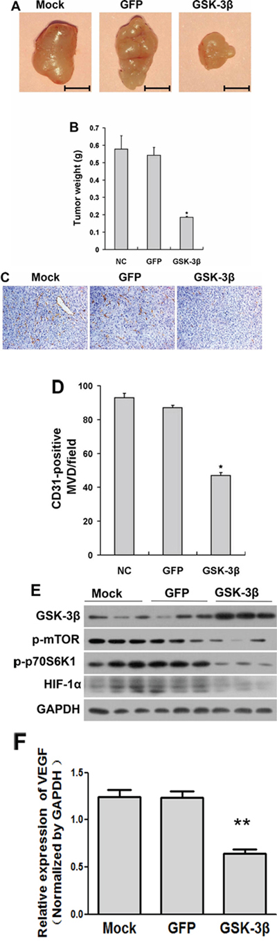 Overexpression of GSK-3β decreased tumor growth in vivo.