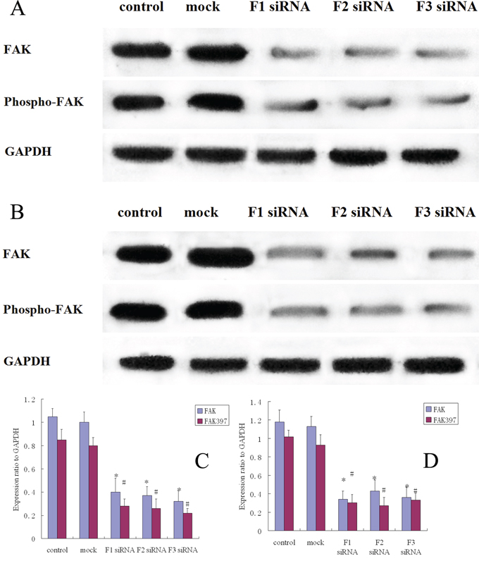 FAK protein expression and FAK phosphorylation in siRNA treated osteosarcoma, control and mock group cells.