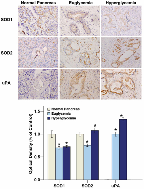 Hyperglycemia promotes SOD2 and uPA expressions in human PC tissues.