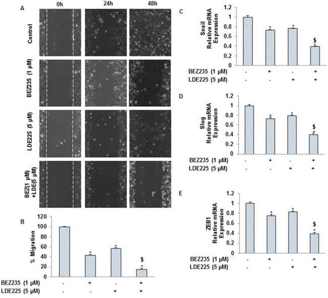 NVP-LDE-225, NVP-BEZ-235 and their combination regulate the pancreatic CSC motility and migration, and the expression of EMT-related genes.