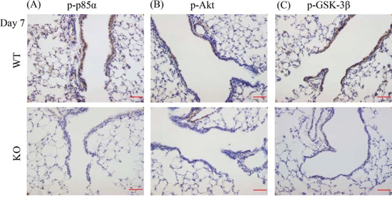 XB130 deficiency reduced phosphorylation of molecules on PI3K/Akt cascade during small airway epithelial repair.