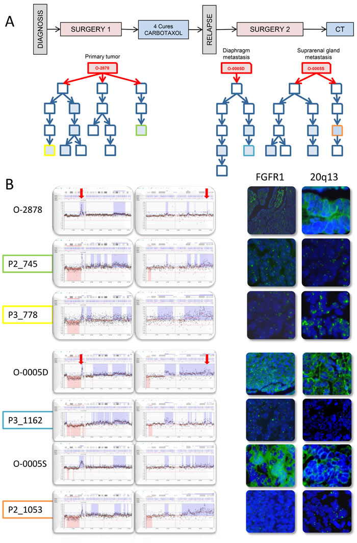 PDX established from tumor O-2878 and subsequent metastatic recurrences O-0005D and O-0005S show fluctuating CNC patterns at 8p12 and 20q13 indicating oligoclonality.