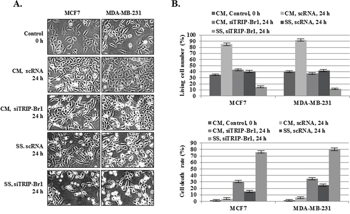 Inhibitory role of TRIP-Br1 in serum starvation-induced cell death.