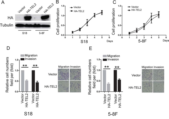 Overexpression of TEL2 suppresses migration and invasion of NPC cells.