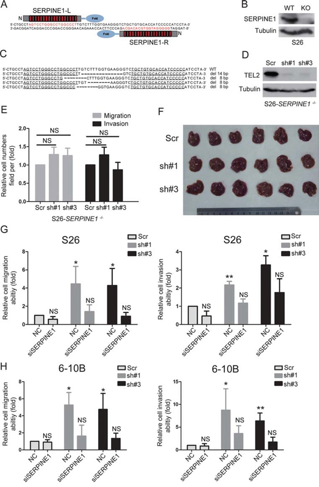 The promotion of NPC metastasis induced by down-regulating TEL2 depends on the up-regulation of SERPINE1.