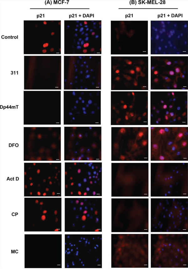 Immunofluorescence studies examining the cellular distribution of p21 observed in: A. MCF-7 cells, or B. SK-MEL-28 cells, in response to chelators or DNA-damaging agents.