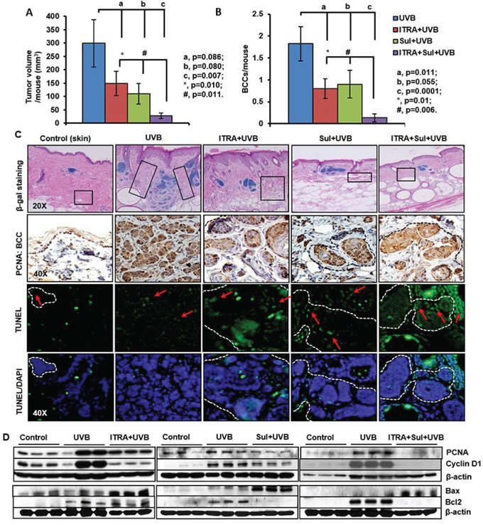 The NSAID Sulindac (Sul) potentiates SMO inhibitor, itraconazole (ITRA)-mediated inhibition of UVB-induced growth of BCCs in Ptch1+/−/SKH-1 mice.