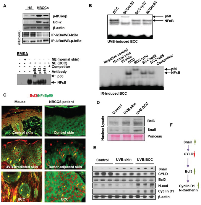 Activation of non-canonical NFκB signaling pathway in human and murine BCCs.