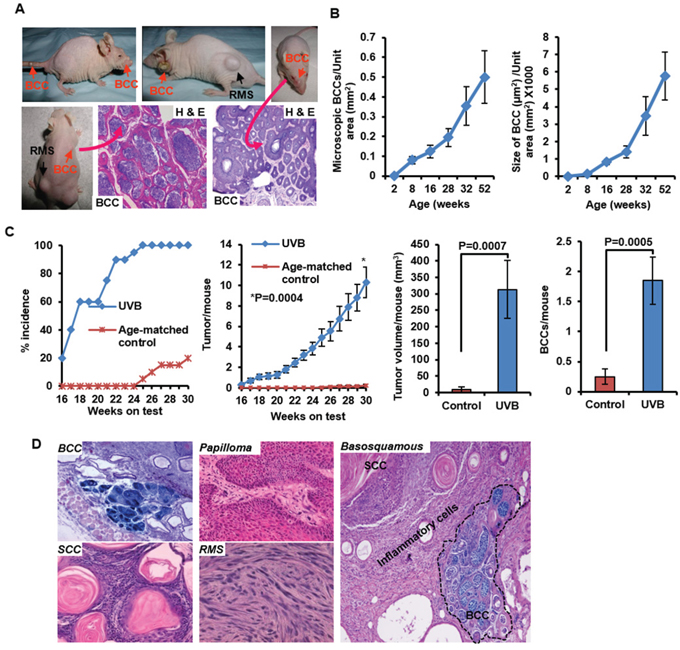 Development of spontaneous and UVB-induced BCCs in Ptch1+/−/SKH-1 hairless mice.