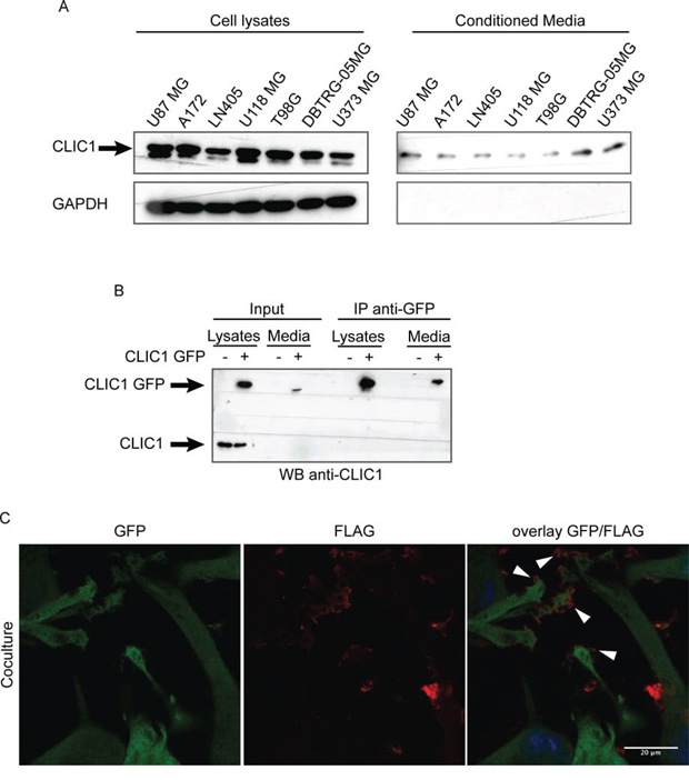 CLIC1 protein is secreted by glioblastoma cells.