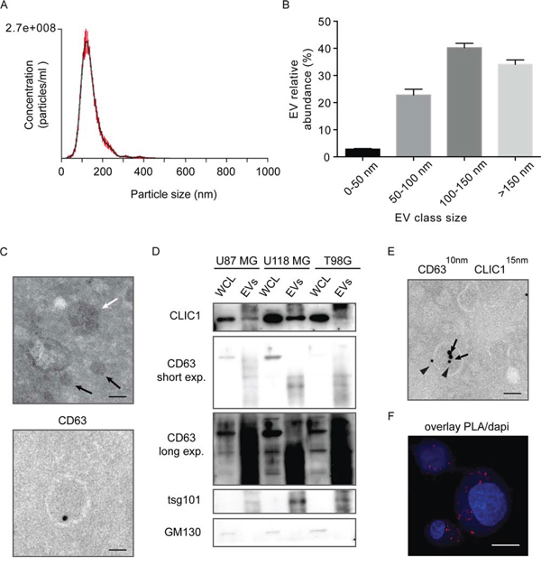 CLIC1 protein is secreted by GBM cells via Evs.