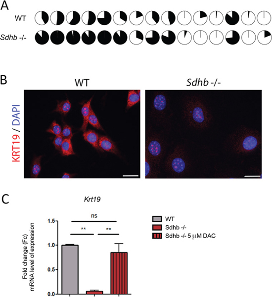 KRT19 loss of expression is driven by hypermethylation.