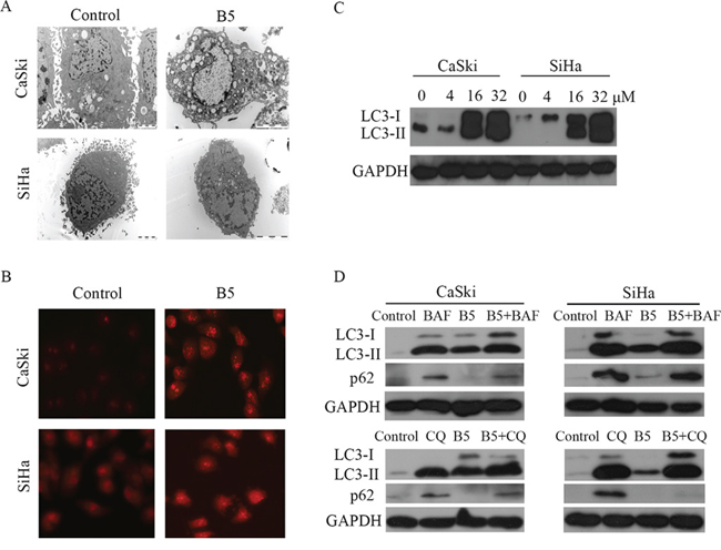 B5-induced autophagy in CaSki and SiHa cells.