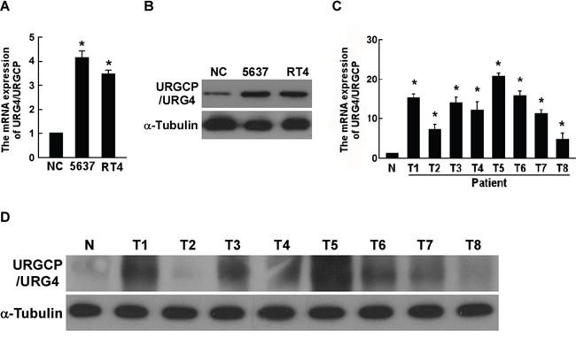 URGCP/URG4 is upregulated in bladder cancer cells and tissues.