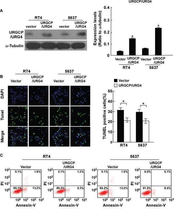 Overexpression of URGCP/URG4 inhibits cisplatin-induced apoptosisof bladder cancer cells.