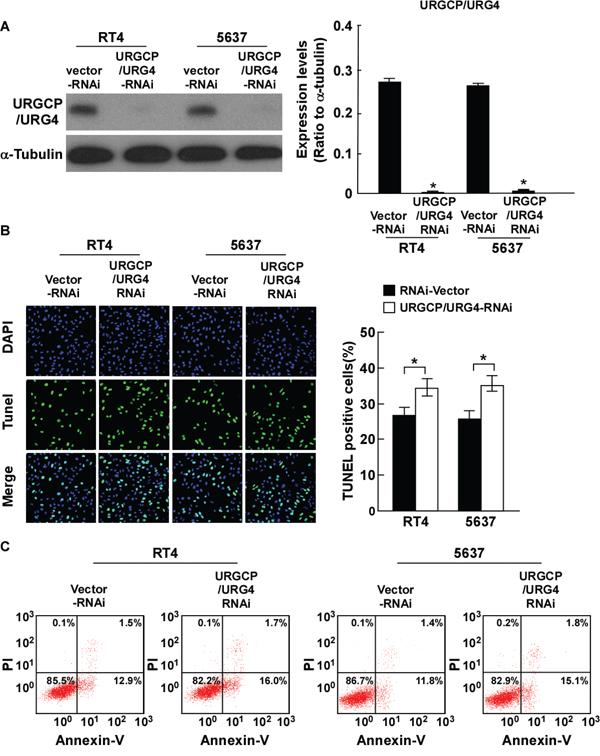 Silencing URGCP/URG4 promotes cisplatin-induced apoptosis ofbladder cancer cells.
