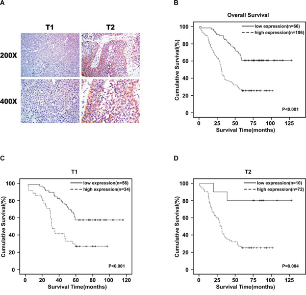URGCP/URG4 is upregulation in bladder cancer patients' tissues and correlated with poor clinical outcome.