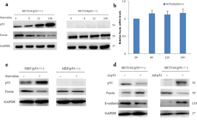 Wild-type p53 inhibits Fascin protein expression.