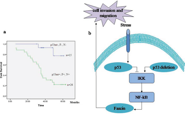 The signature of p53 mutation, high NF-κB and Fascin and low E-cadherin expression in patients with colorectal adenocarcinomas.