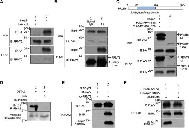 PRMT6 methylates p21 in vivo.
