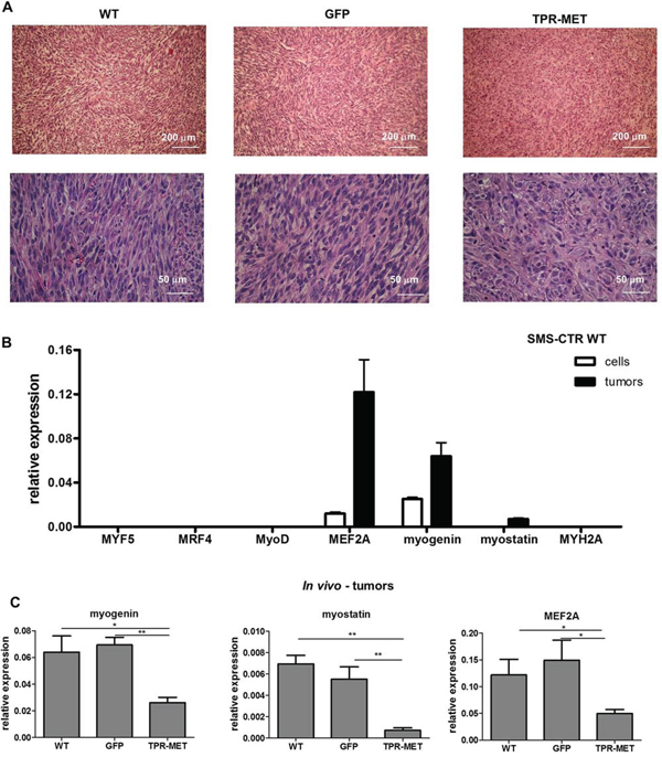 Activation of MET signaling in SMS-CTR ERMS blocks myogenic differentiation of tumors in vivo.