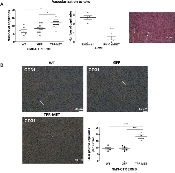 Activation of MET signaling in SMS-CTR ERMS enhances tumor vascularization in vivo, whereas MET silencing in RH30 ARMS exerts the opposite effects.