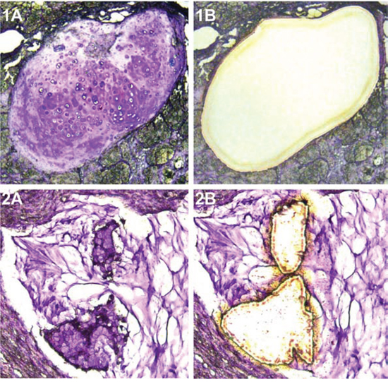 Microdissected teratoma and mucinous carcinoma component analyzed.