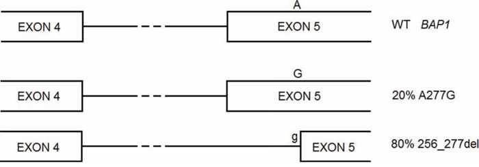 BAP1 A277G is a germline mutation that gives rise to two alternative splicing forms, one carrying the missense mutation, the other lacking of part of exon 5 and causing frameshift.
