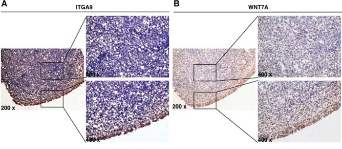 ITGA9 and WNT7A are downregulated in NPC clinical samples.