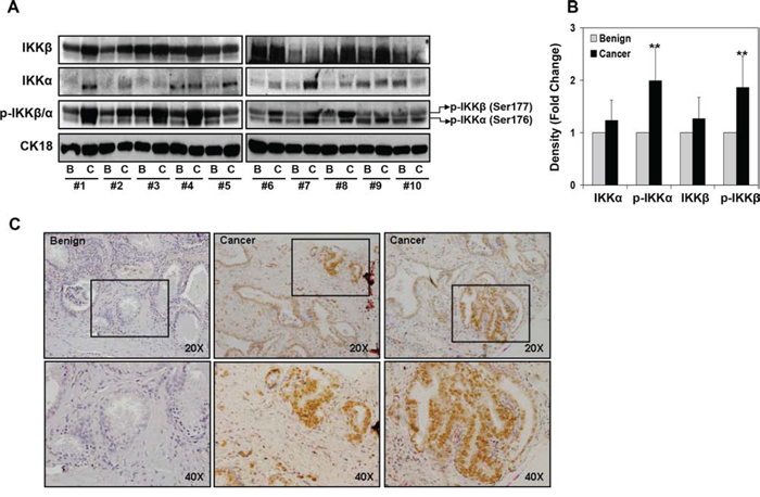 Expression of IKKα/β and their phosphorylation in various representative benign and prostate cancer tissues.