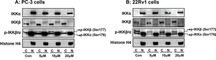 Effect of apigenin on sub-cellular distribution of IKKα, IKKβ and its phosphorylated forms in human prostate cancer cells.