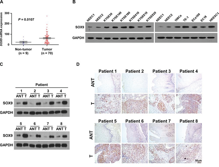 SOX9 is overexpressed in ESCC cell lines and ESCC tissues.