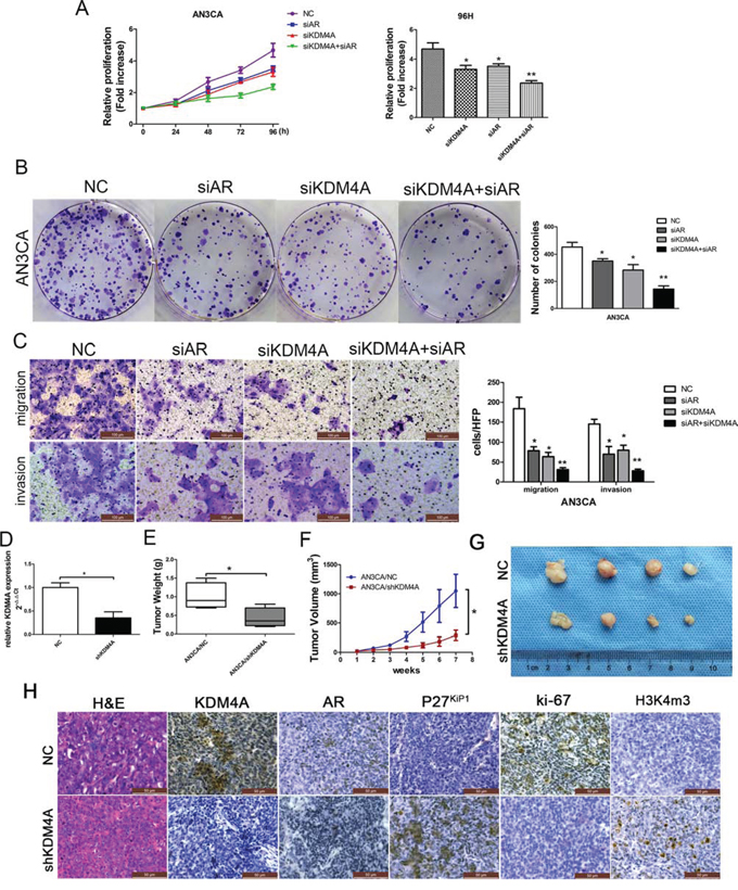 KDM4A, but not KDM4B, promotes AR-mediated carcinogenesis in AN3CA cells.